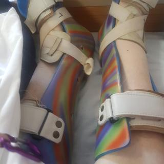 Splints showing cross over velcro straps I used tape for