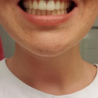 Makeupalley Teeth Whitening Saubhaya Makeup